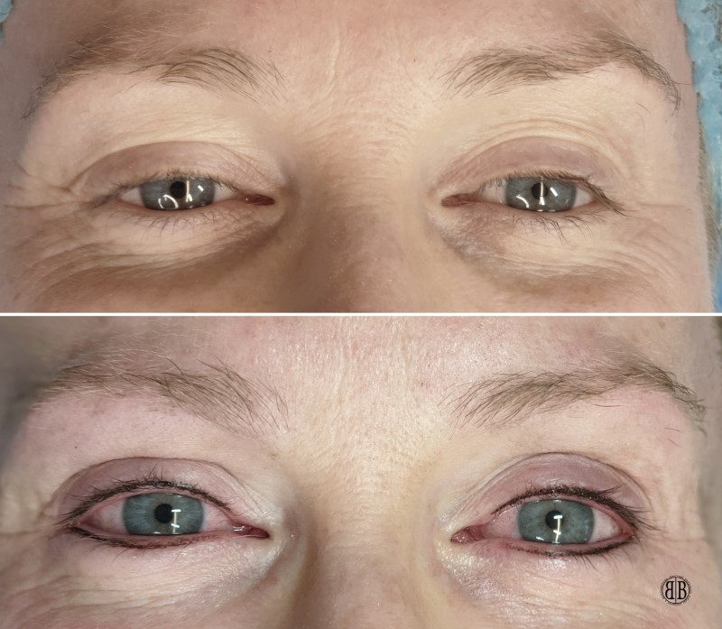 Eyeliner Tattooing in Hertford | Permanent Eyeliner Tattoo